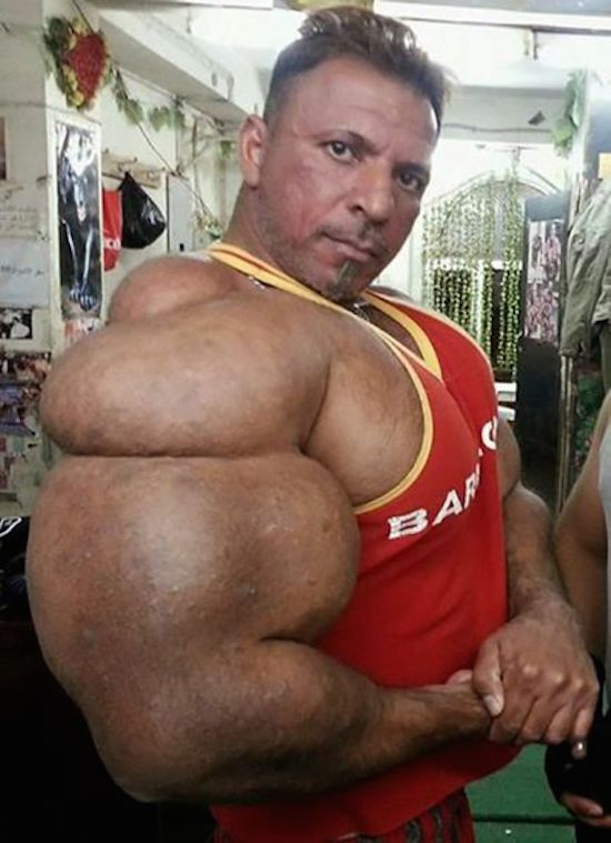 synthol and steroid bodybuilder 5
