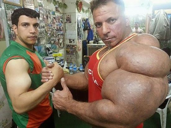 synthol and steroid bodybuilder 6