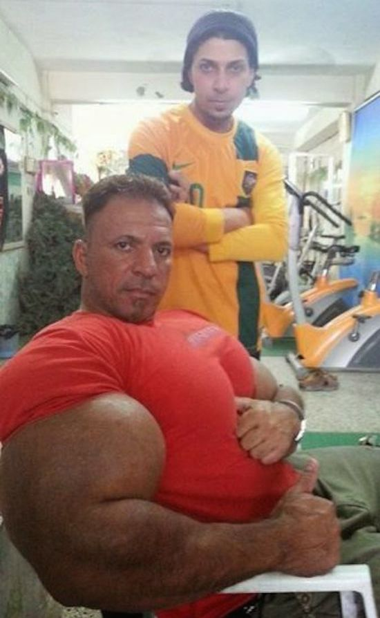 synthol and steroid bodybuilder 7