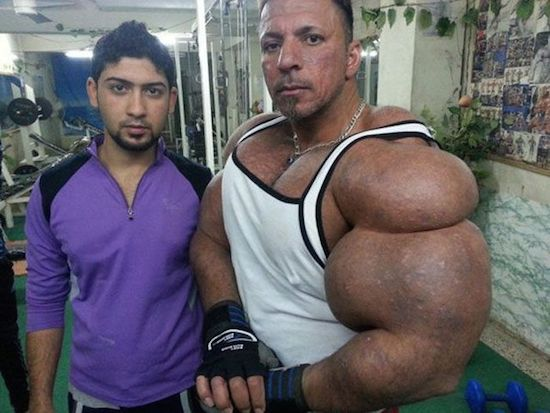 synthol and steroid bodybuilder 9