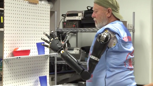 Les Baugh Bionic Arms