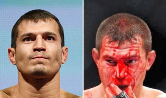 MMA Before And After 1