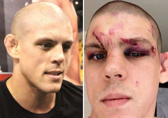 MMA Before And After 10