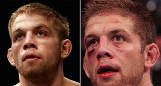MMA Before And After 11