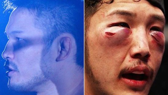 MMA Before And After 13
