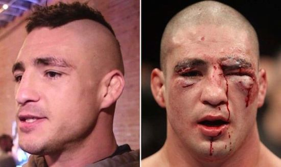 MMA Before And After 2