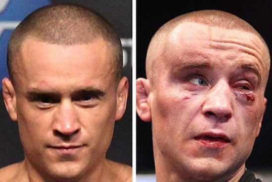 MMA Before And After 3