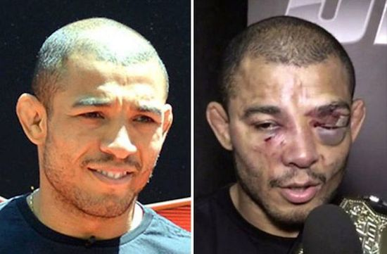 MMA Before And After 4