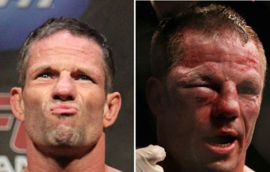 MMA Before And After 6