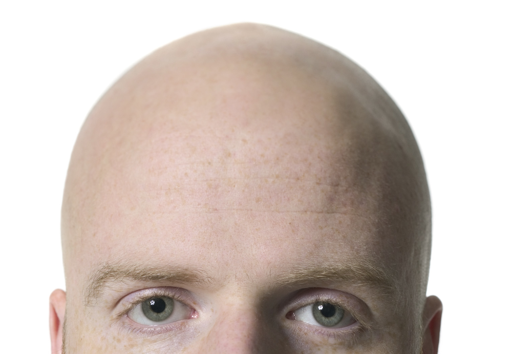 Baldness: the cure picture