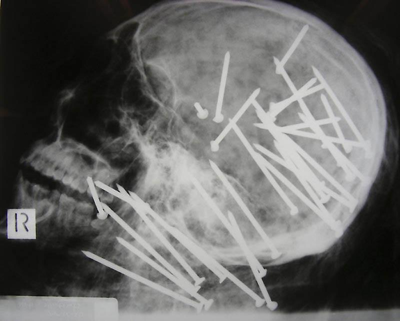 Bizarre X Rays 1