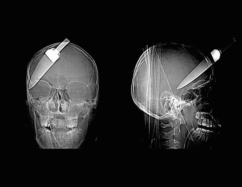 Knife In The Head X Ray