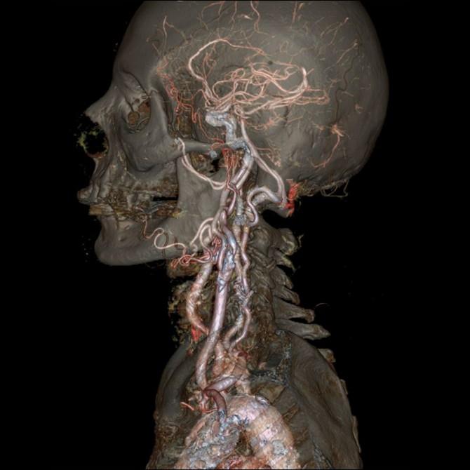 Revolution CT - Head and neck