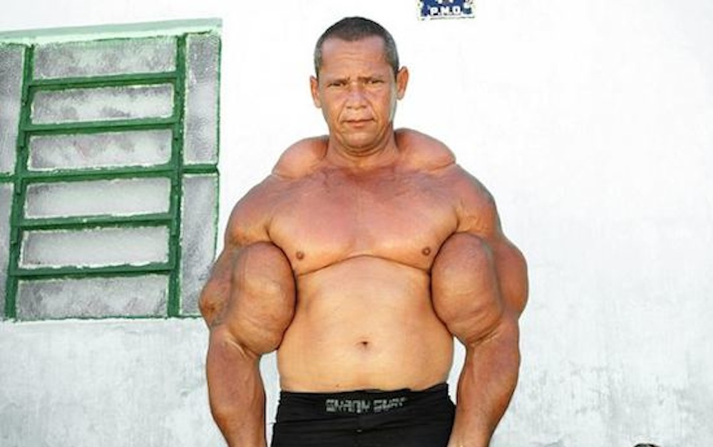 Weak Synthol Freak