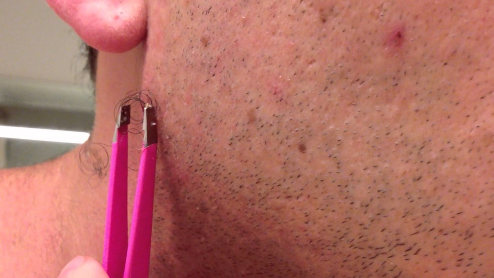 World's Largest Ingrown Hair