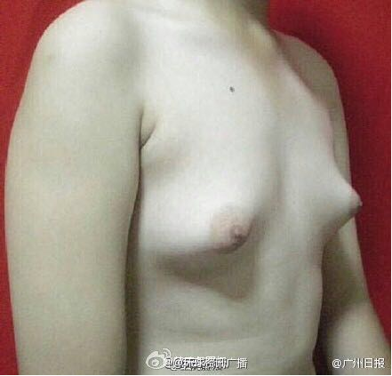 Boobs Grown By Fried Chicken