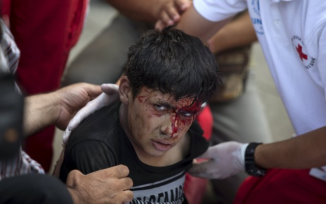 Macedonia - Asylum Seekers Syria - A Bloody Fight