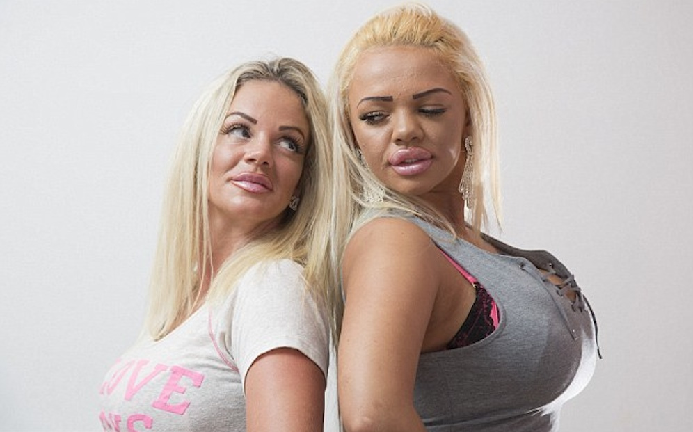 Plastic Surgery Jordan Lookalikes Mother And Daughter
