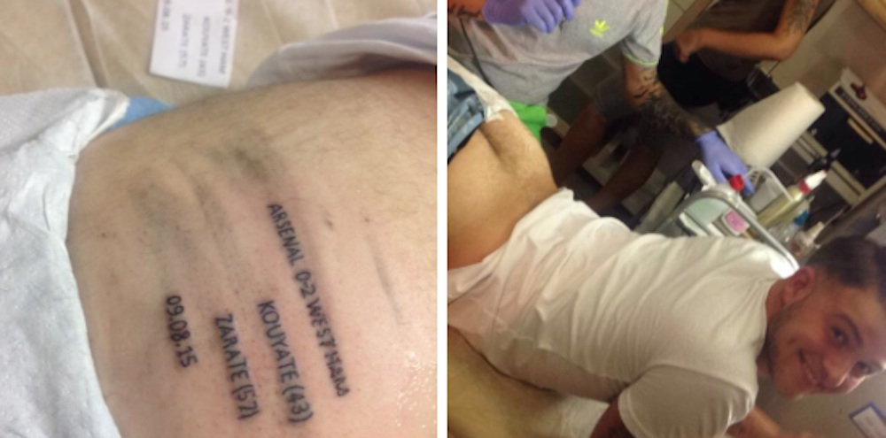 West Ham Fan Tattoos Scores Butt