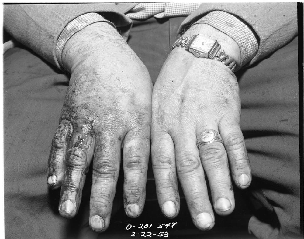 James Ellroy - LAPD 53 - Fingers