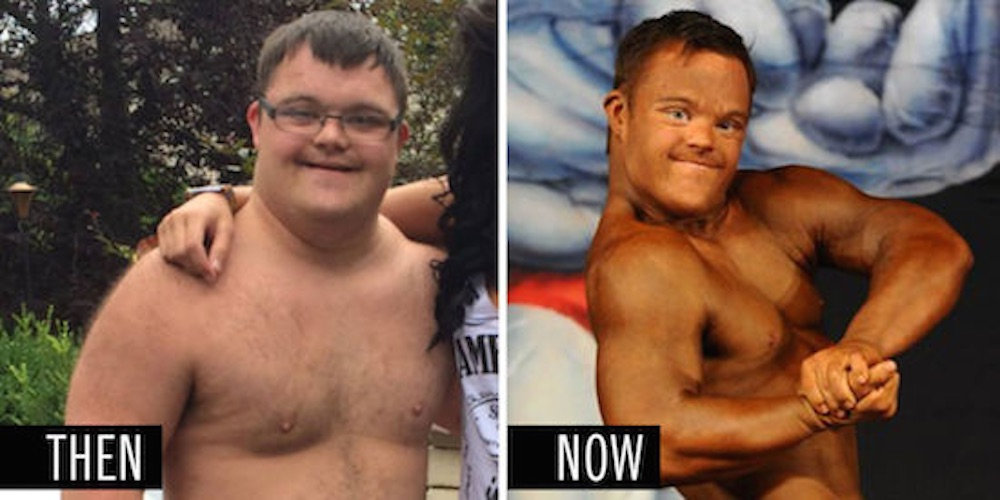 Down's Syndrome Body Builder