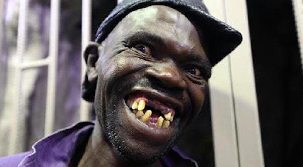 Mister Ugly Competition Winner