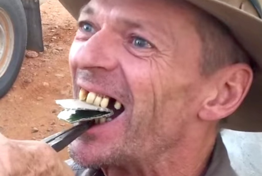 Australian Guy Teeth