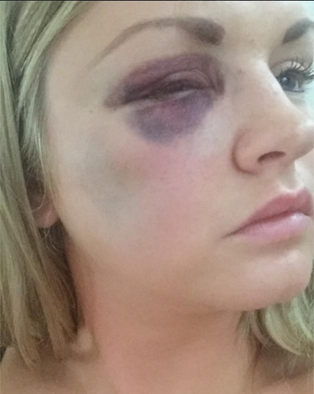 Samantha Dewar, from Macclesfield, was attacked by friend's groom on wedding day when she was bridesmaid