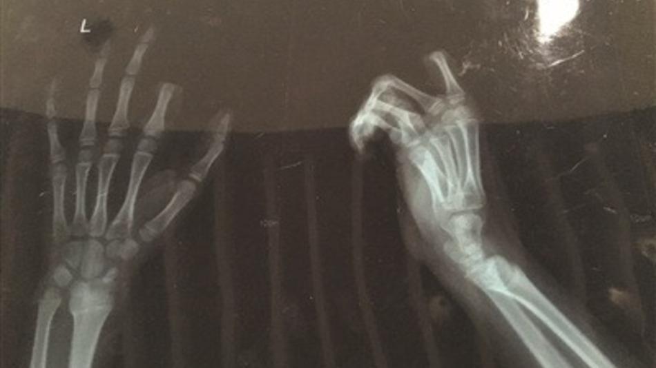 Chopped Off Finger