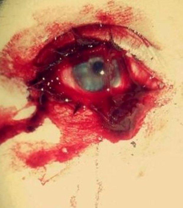 Recent pics of Marnie bleeding (4) (Large).jpg