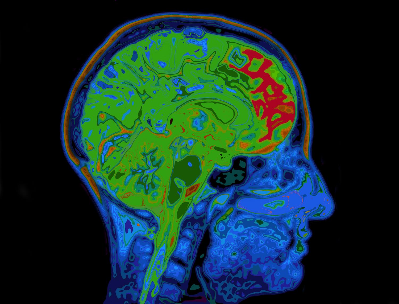 Brain LSD