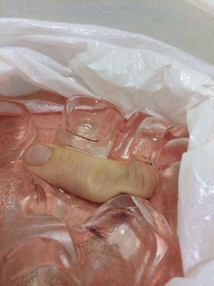 Finger On Ice
