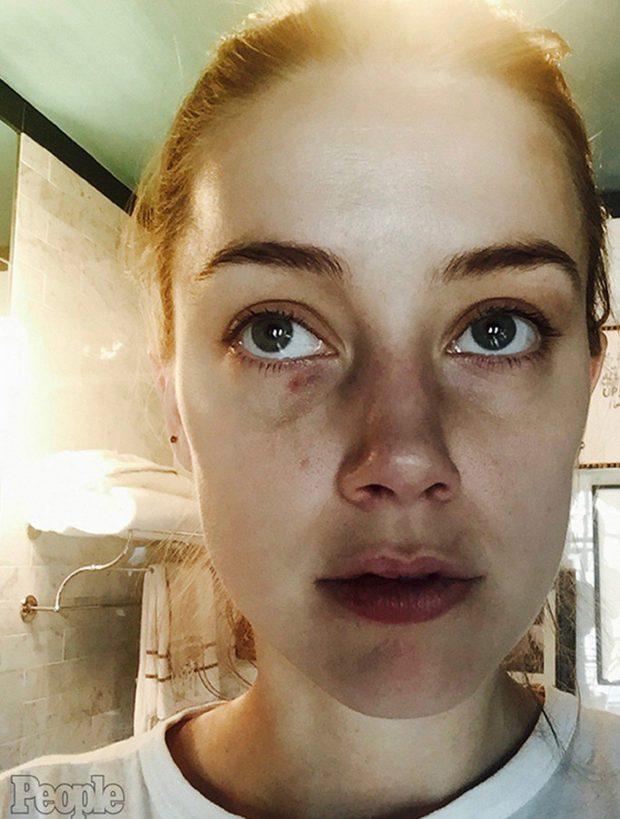 Amber Heard Domestic Abuse 3