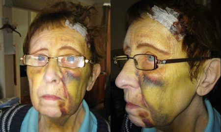 OAP Brick Smashed In Face