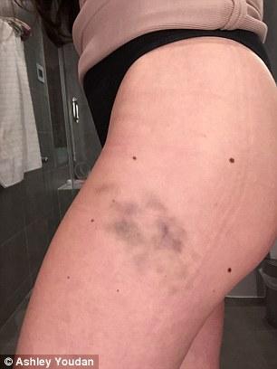 bruise1