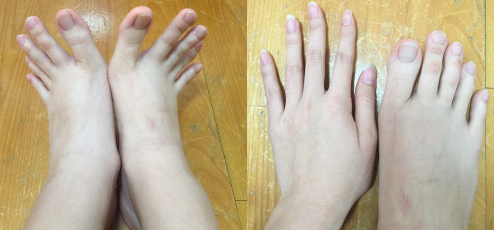 This Woman Is Baffling The World With Her Creepy Feet With ...