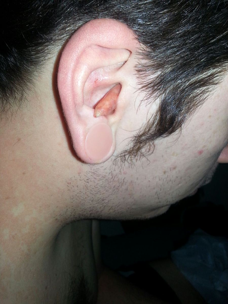 Ear Infection 3
