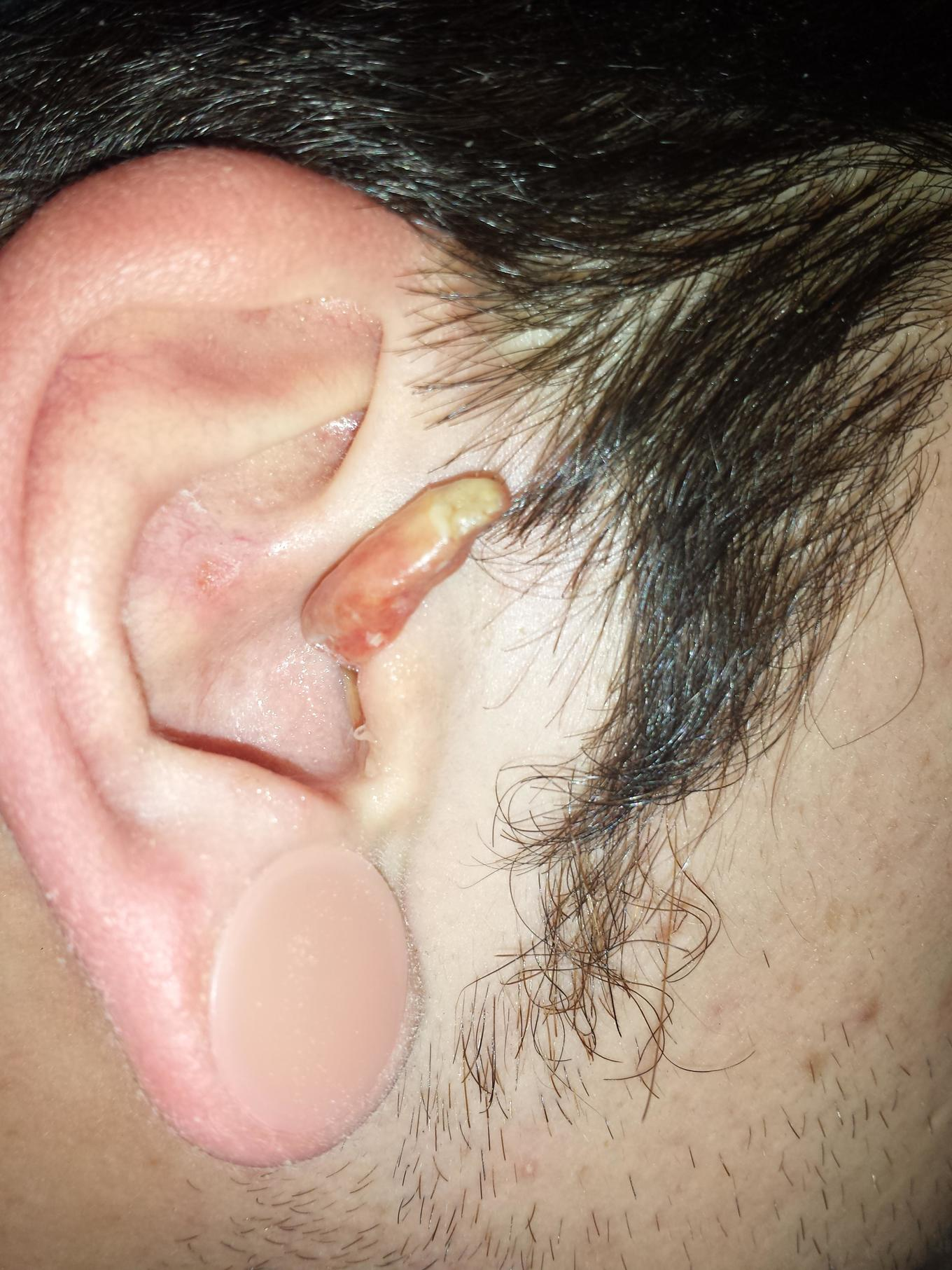 Ear Infection 7