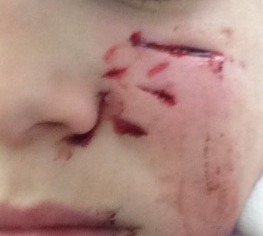 Scars Dog Attack