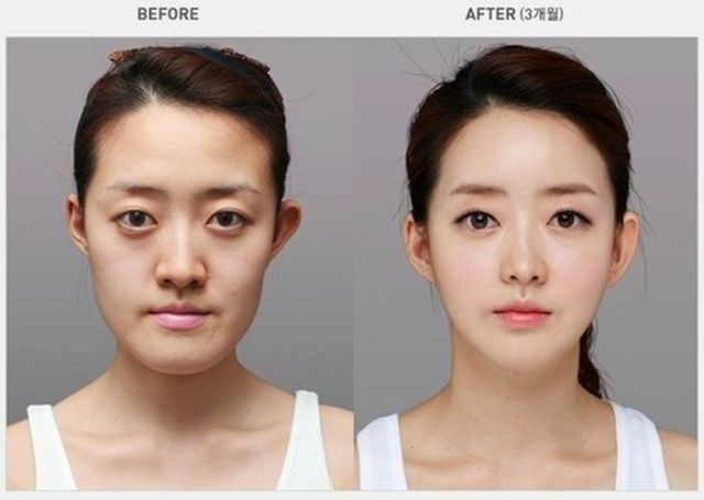 Resultado de imagen para korean surgery before and after