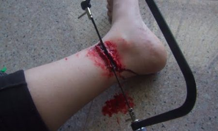 Foot Chopped Off