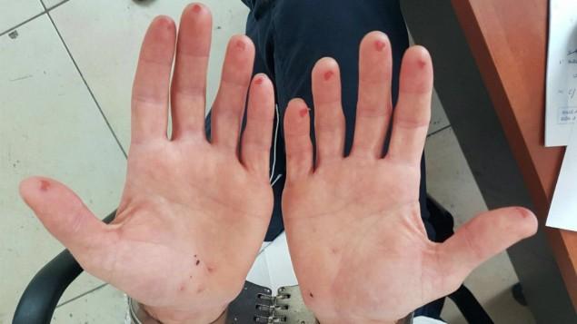 Sliced fingertips