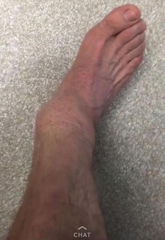 Steve-O Ankle