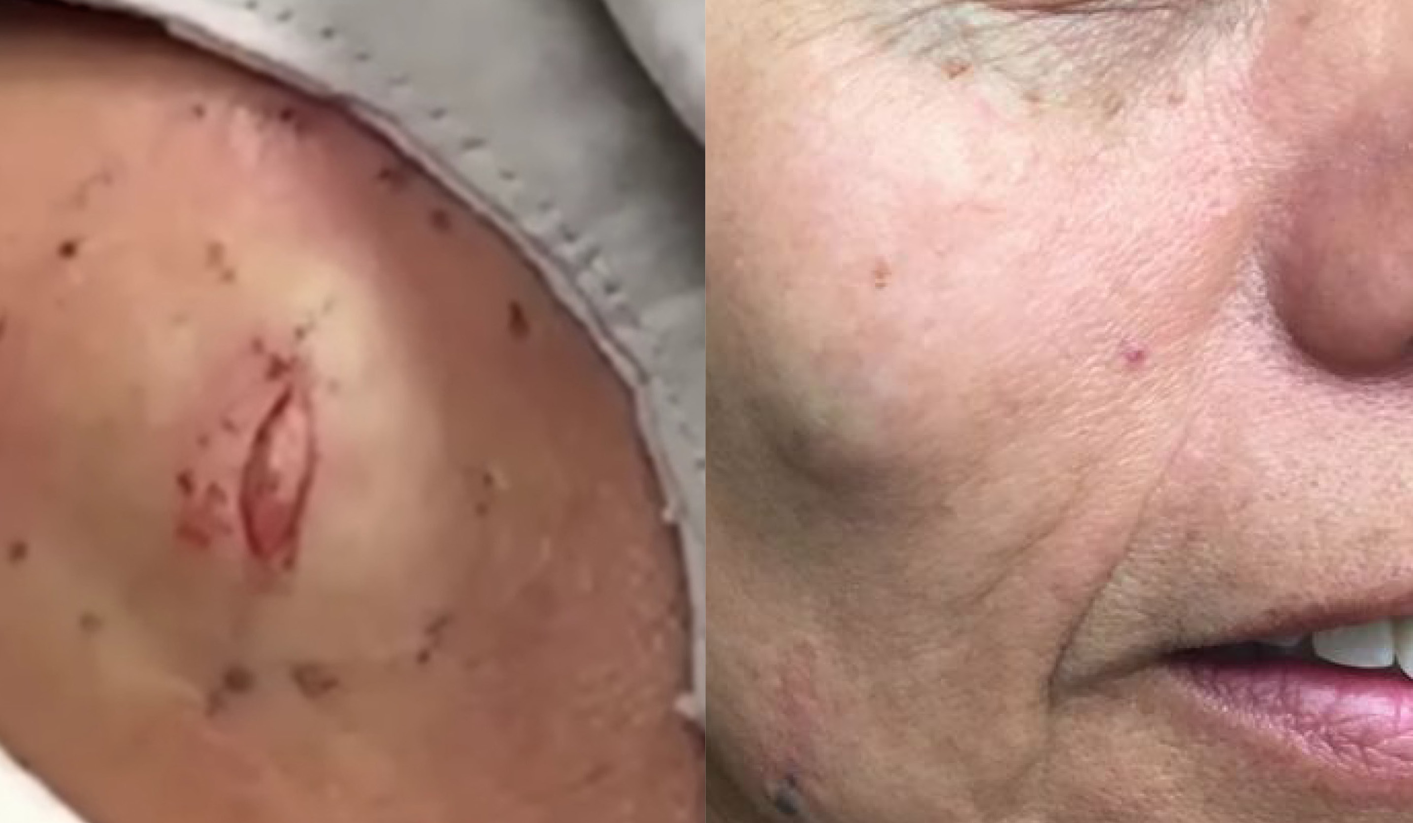 cyst-popping