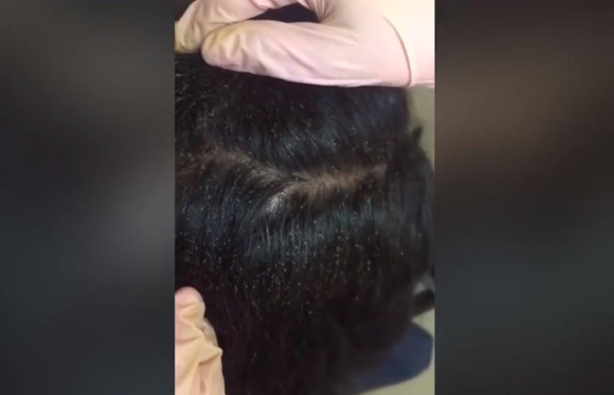 head-lice