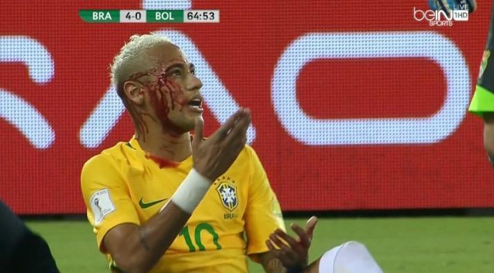 neymar-battered