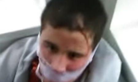 tortured-kid