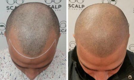 Tattoing Bald
