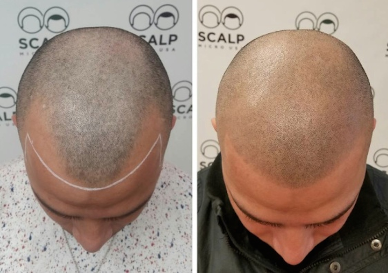 Men with tattoos bald Should Bald
