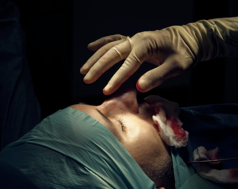 Cosmetic Surgery for Men:  Male Vanity, the new Industry